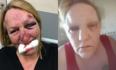Aycliffe women appeal after brutal Silverdale Place attack